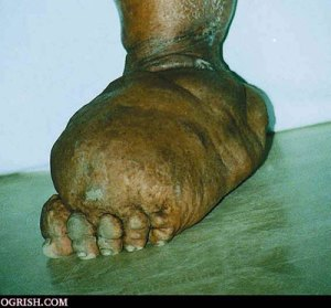 A foot infected with elephantiasis